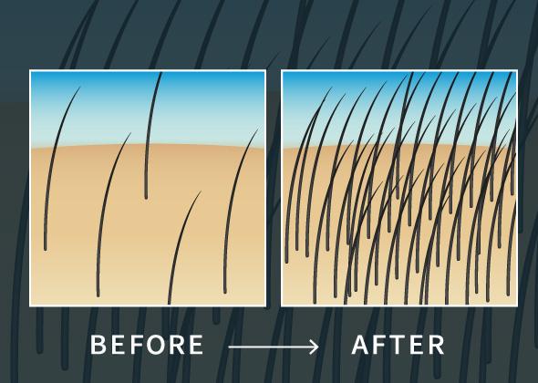 短時間で簡単に増毛可能